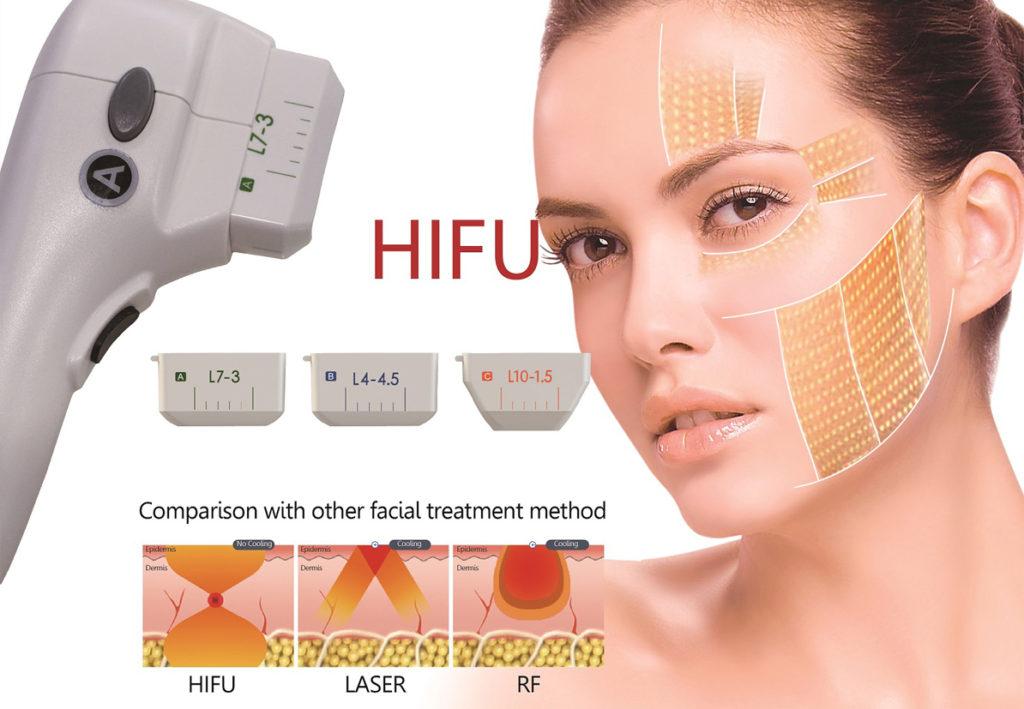 Cum functioneaza HIFU?